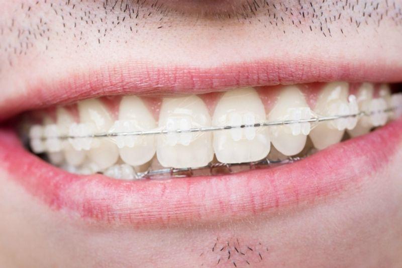 apparecchio denti adulti