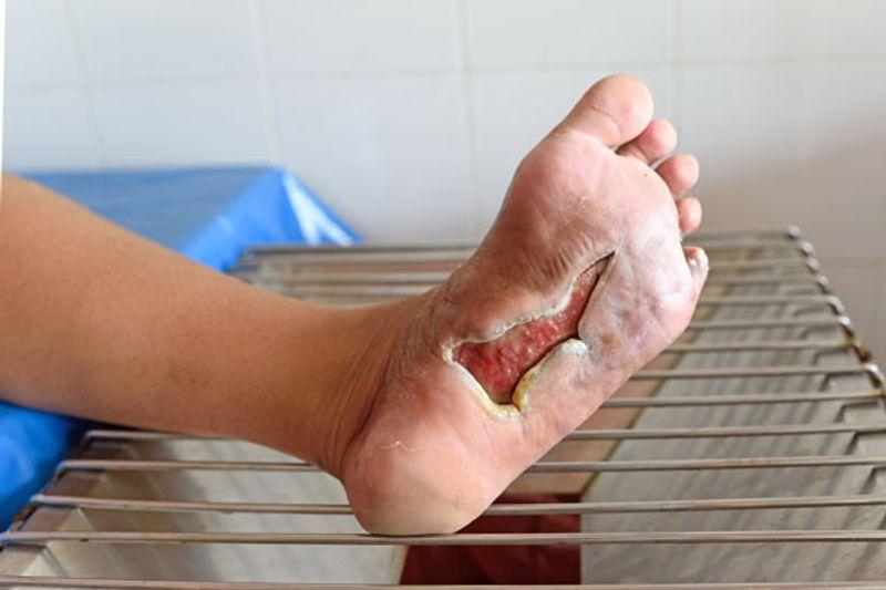 cosa fare in caso di gamba intorpidita