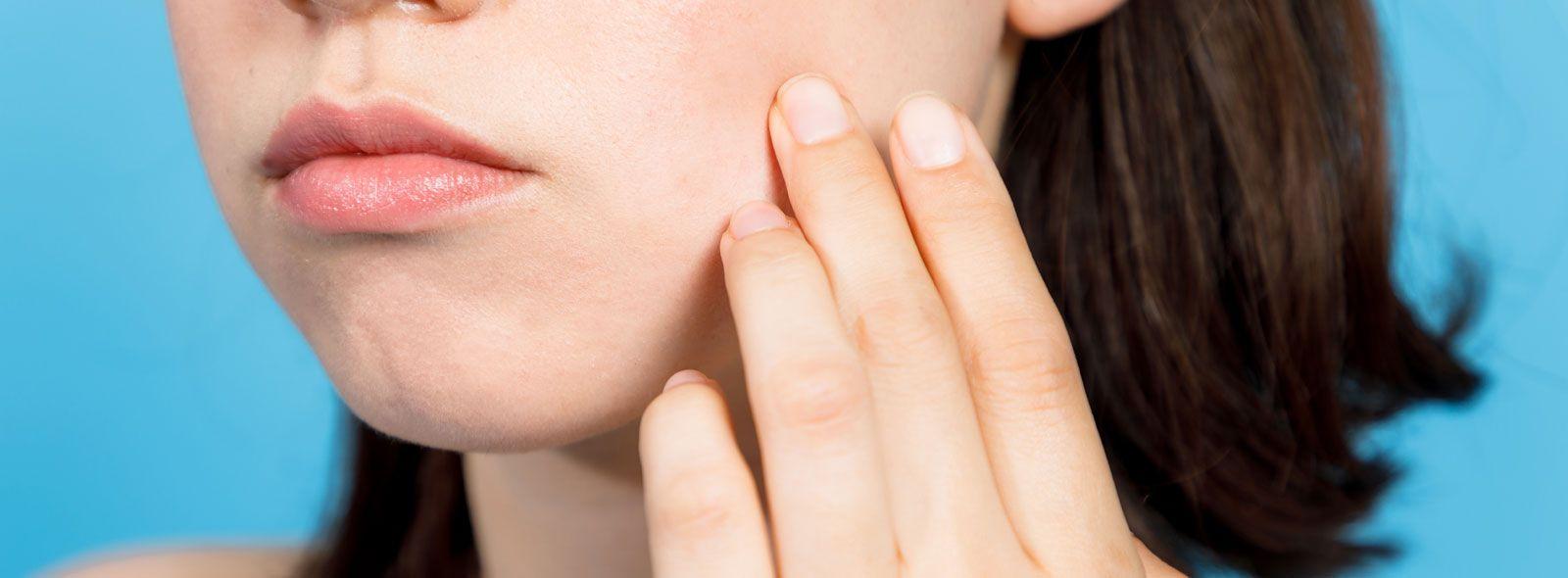 Macchie acne