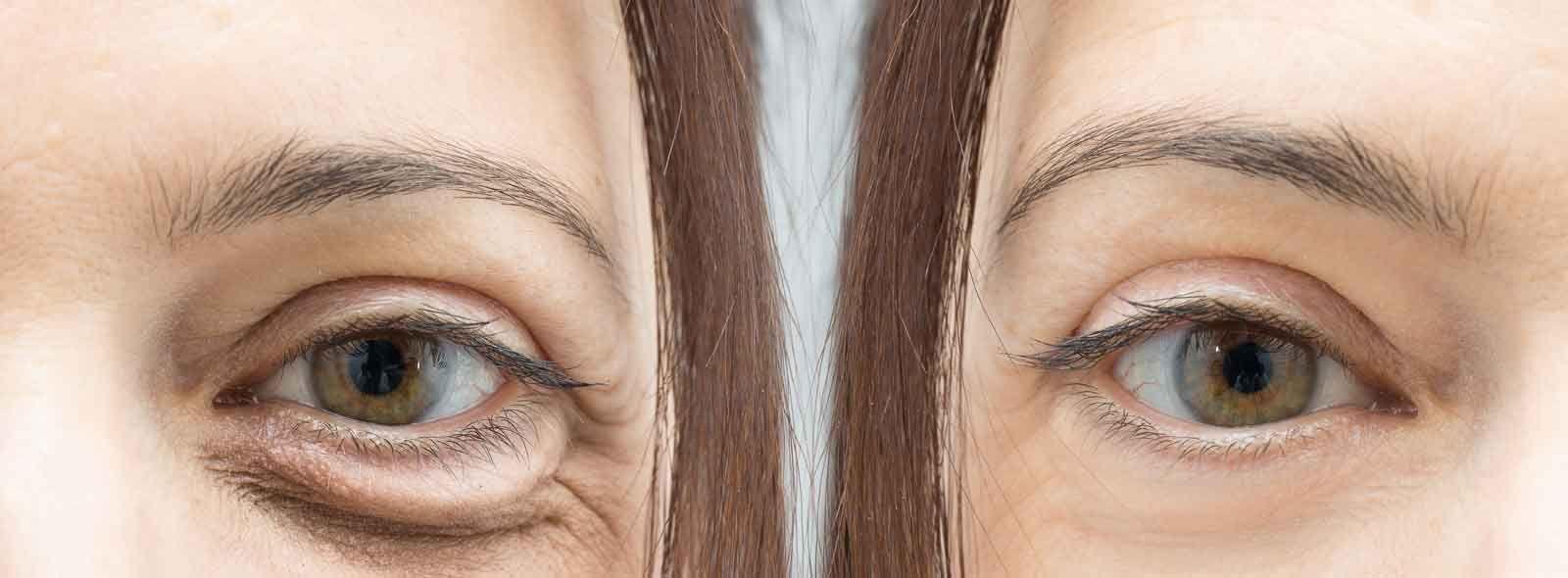 Rughe sotto gli occhi: come eliminarle