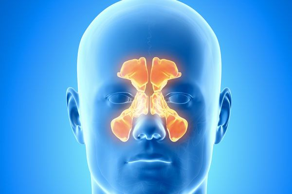 sinusite anatomia